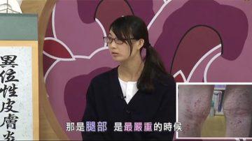 【走近韩医】异位性皮肤炎