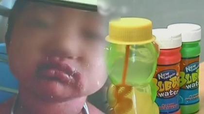 泡泡水强腐蚀 4岁童玩后浑身蜕皮嘴溃烂