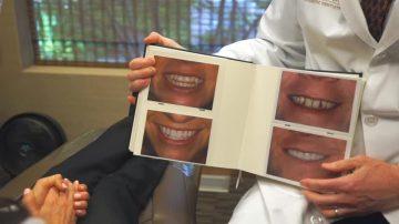 牙齒美白整形學問大 瓷牙貼片最方便