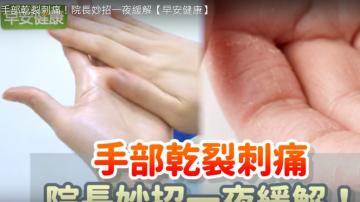 手部乾裂怎麼辦 教你一招緩解疼痛(視頻)